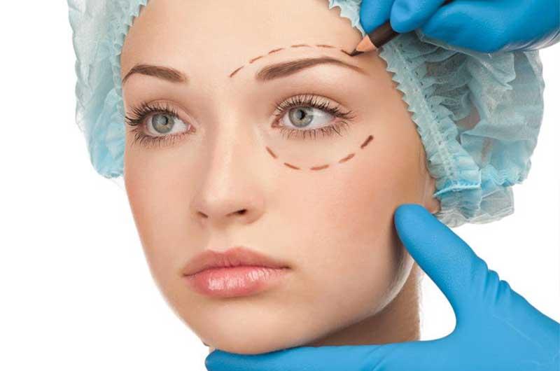 Rejuvenecimiento del contorno ocular con el Blefarolaser de IML