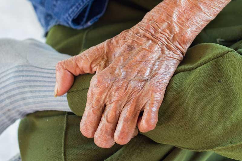 En el Día Mundial de la Lepra la AEDV informa sobre la realidad de la enfermedad