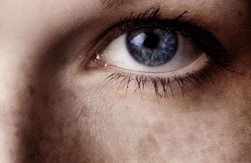 Ácido tranexámico - Melasma