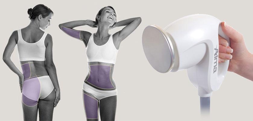 Accent Prime de Alma Lasers, ultrasonidos guiados para una remodelación corporal en 20 minutos