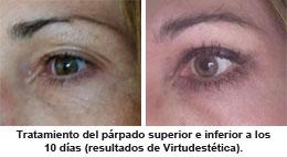 tratamiento Shock de la dra. Virtudes Ruiz